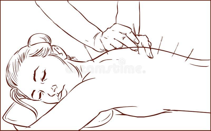 En vektorillustration av en behandling för kvinnahäleriakupunktur stock illustrationer