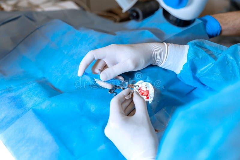 En yrkesm?ssig ?gonl?kare utf?r ?gonkirurgi med ett mikroskop Händer av kirurgslutet upp Öm öga med expanderen arkivbilder