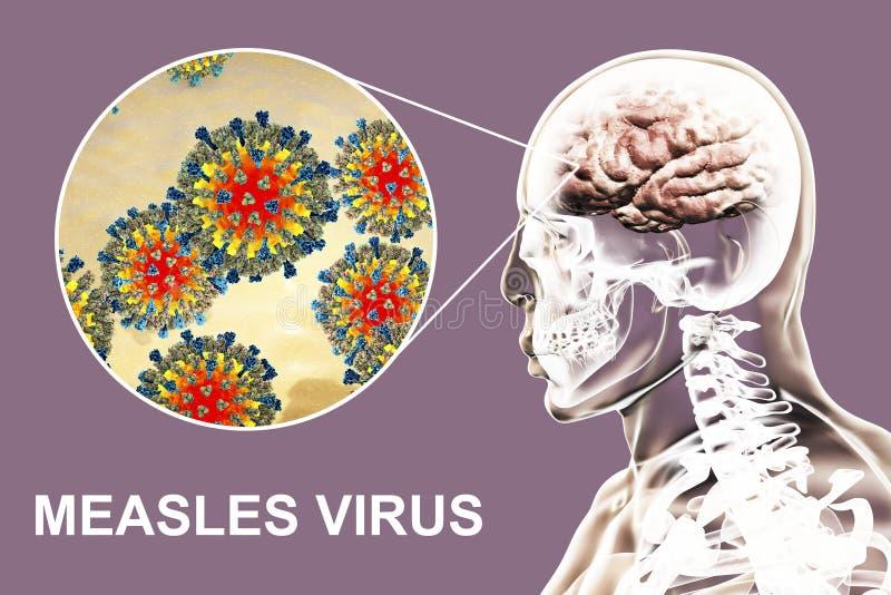 encéphalite causée par la rougeole illustration stock