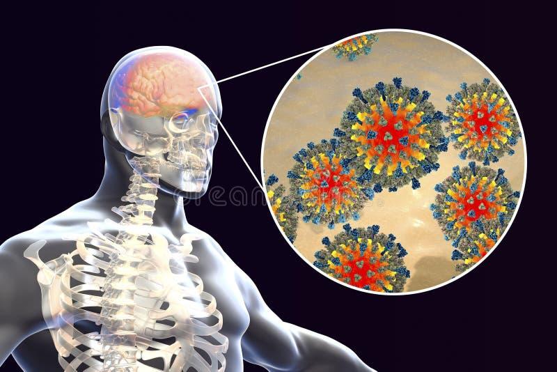 encéphalite causée par la rougeole, concept médical illustration stock