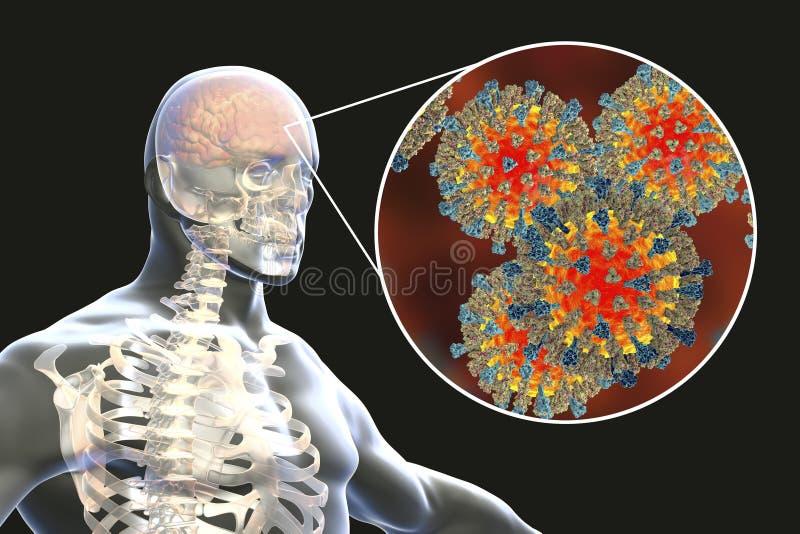 encéphalite causée par la rougeole, concept médical illustration de vecteur