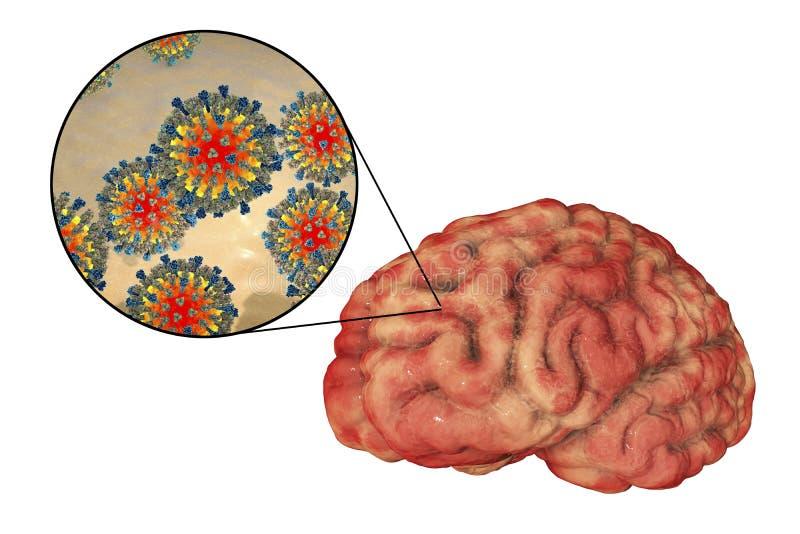 encéphalite causée par la rougeole, concept médical illustration libre de droits
