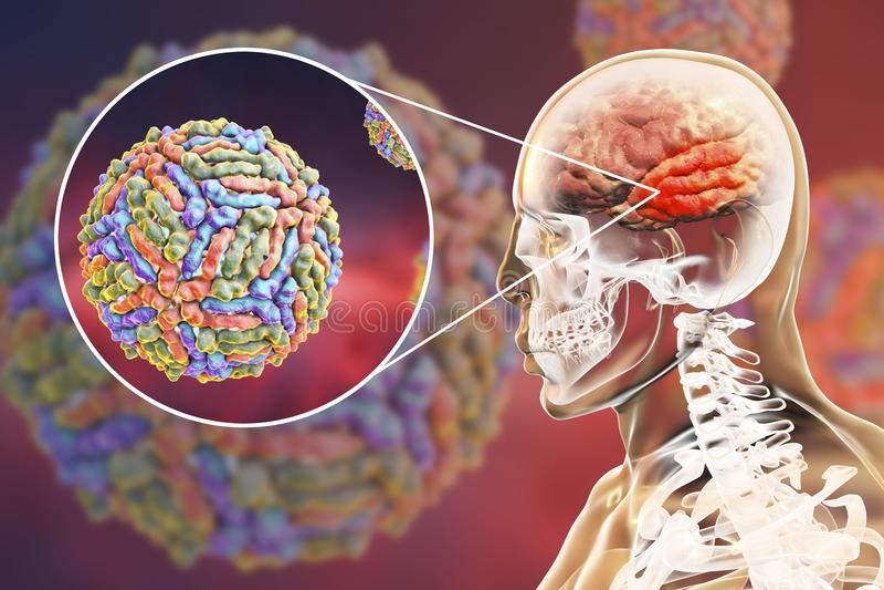 Encéphalite de virus West Nile illustration stock