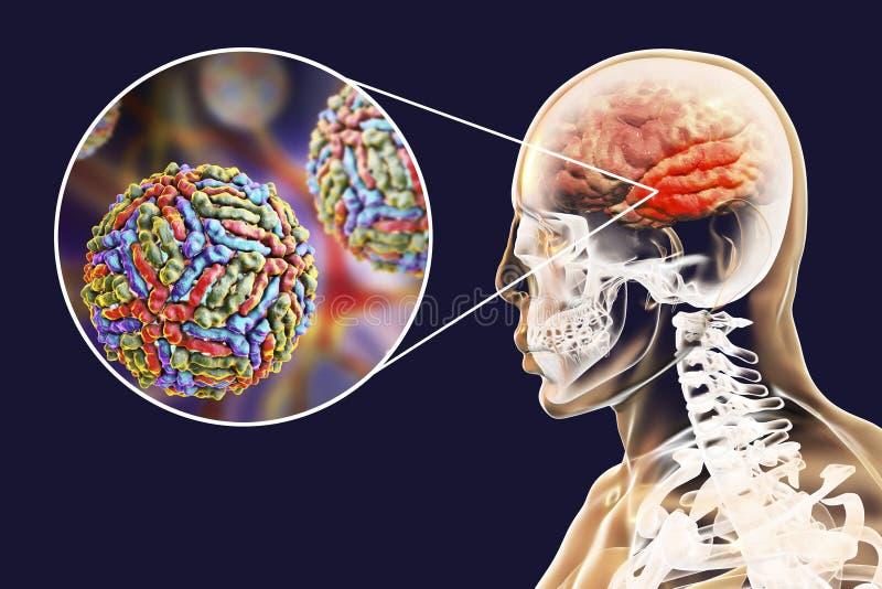 Encéphalite de virus West Nile illustration libre de droits
