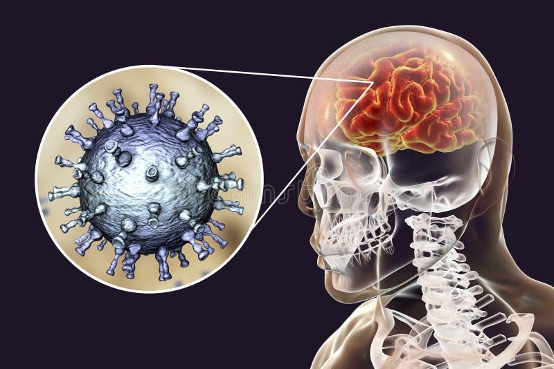 Encéphalite de virus de zoster de Varicella illustration libre de droits