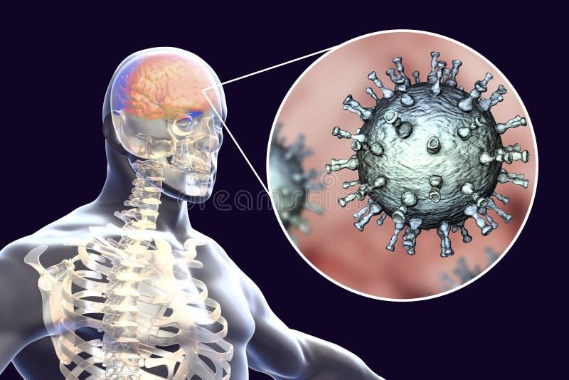 Encéphalite de virus de zoster de Varicella illustration stock