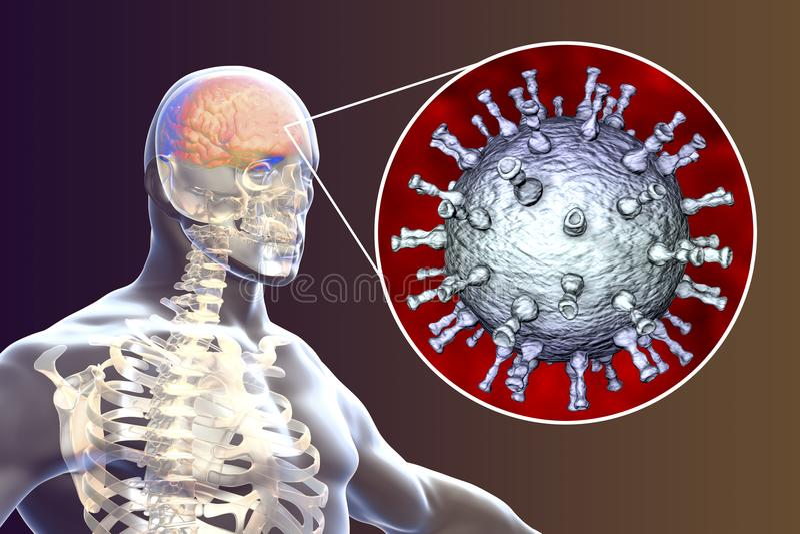 Encéphalite de virus de zoster de Varicella illustration de vecteur