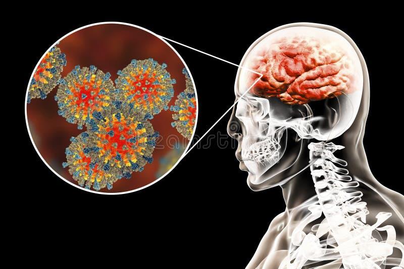 Encéphalite provoquée par des virus de la rougeole, concept médical illustration stock