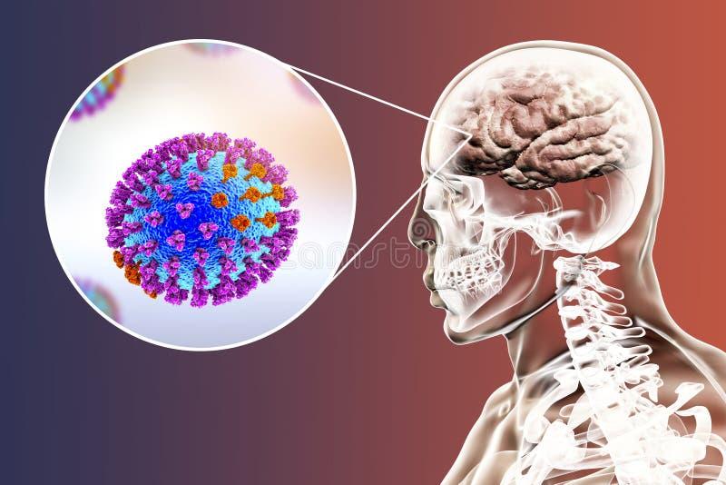 Encefalite da complicação da gripe ilustração do vetor