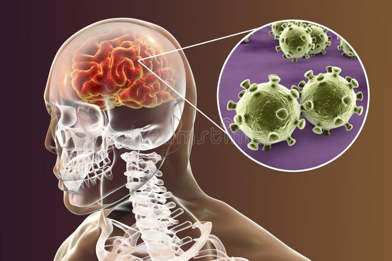 Encefalite viral, conceito médico ilustração royalty free