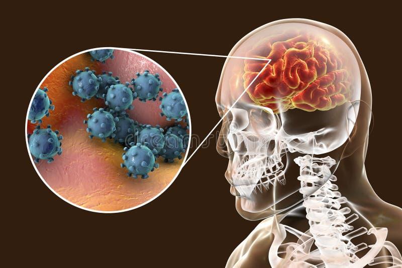 Encefalite viral, conceito médico ilustração stock