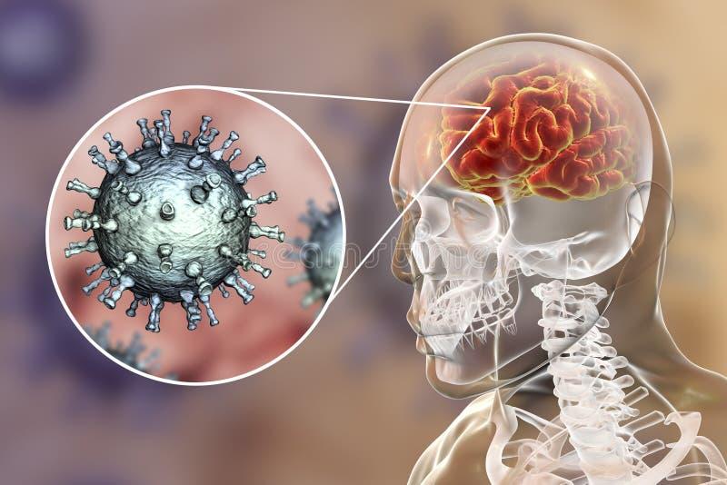 Encefalitis del virus del zoster de la varicela stock de ilustración