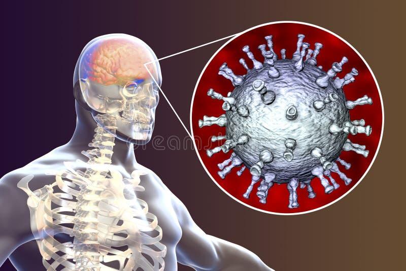Encefalitis del virus del zoster de la varicela ilustración del vector