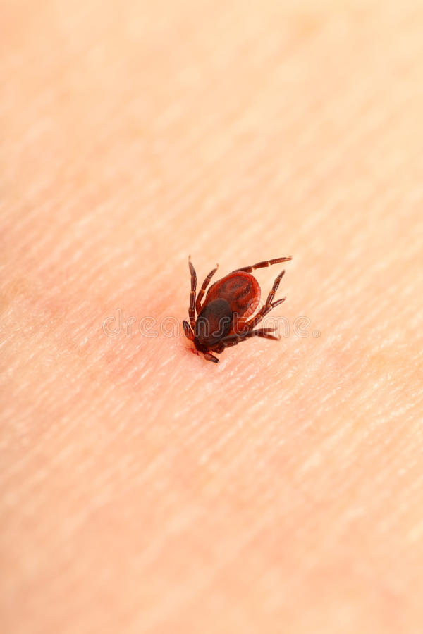 Encephalitis tick. Ticks on human skin. Ixodes ricinus can transmit both bacterial and viral pathogens such as the causative agents of Lyme disease and tick royalty free stock photos