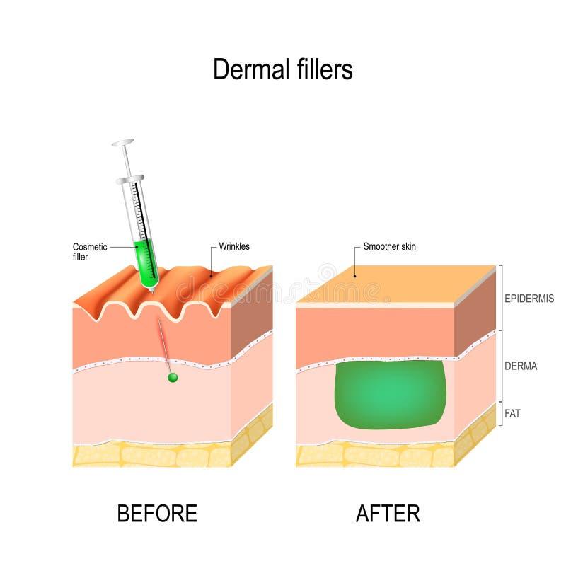 Enchimento cosmético ou cutâneo Antes e depois da injeção ilustração royalty free