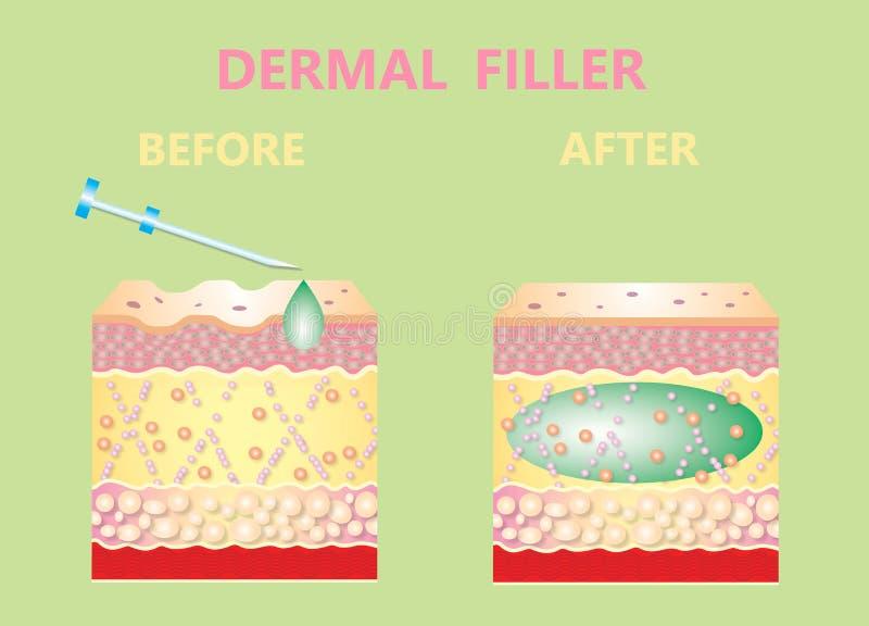 Enchimento cosmético ou enchimentos cutâneos ilustração do vetor