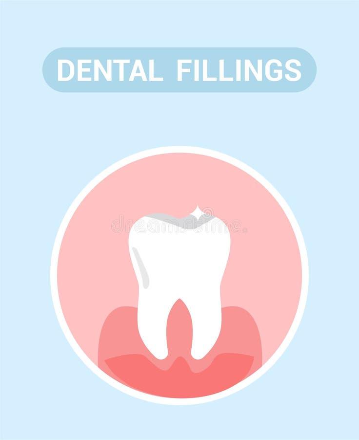 Enchimentos dentais, conceito da bandeira da Web da ajuda médica ilustração stock
