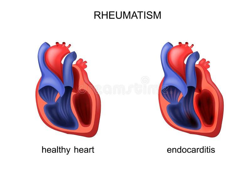 Endocardite sana e malata del cuore illustrazione vettoriale