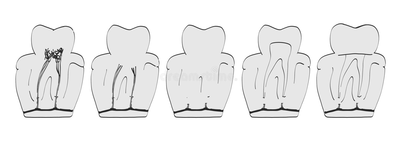 Endodontics royaltyfri illustrationer
