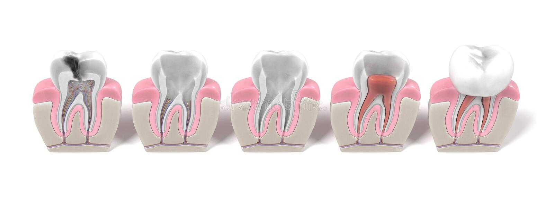 Endodontics - procédure de canal radiculaire illustration libre de droits