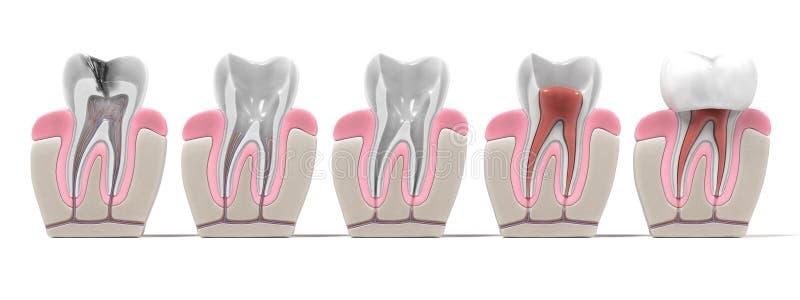 Endodontics - root canal procedure. 3d renderings of endodontics - root canal procedure stock illustration