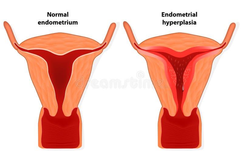 Endometrial hyperplasia royalty-vrije illustratie