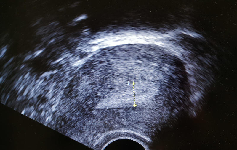 Endometrial laag van de Ecographyultrasone klank stock fotografie