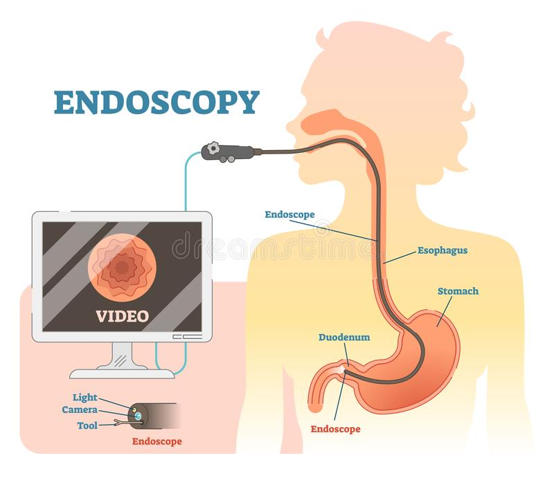 Endoscopy Anatomical Vector Illustration Diagram, Medical Scheme ...