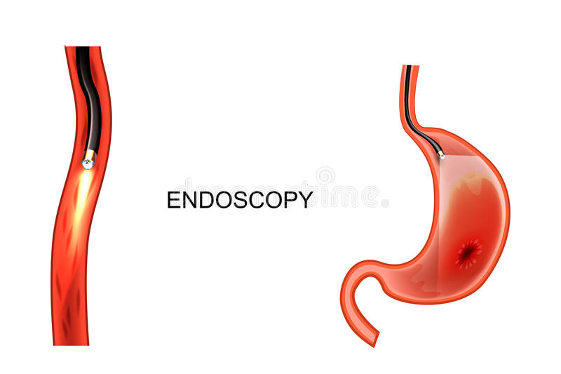 Endoscopy of the stomach. EGD. ulcer, cancer royalty free illustration