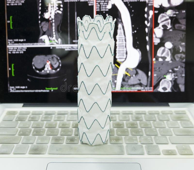 Endovascular stentkneg arkivfoto