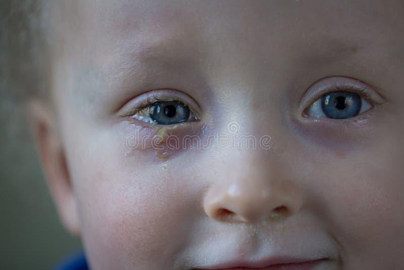 Enfant avec la conjonctivite purulente, infection de l'oeil contagieuse Sympt?mes et concept de traitement Fin vers le haut image stock