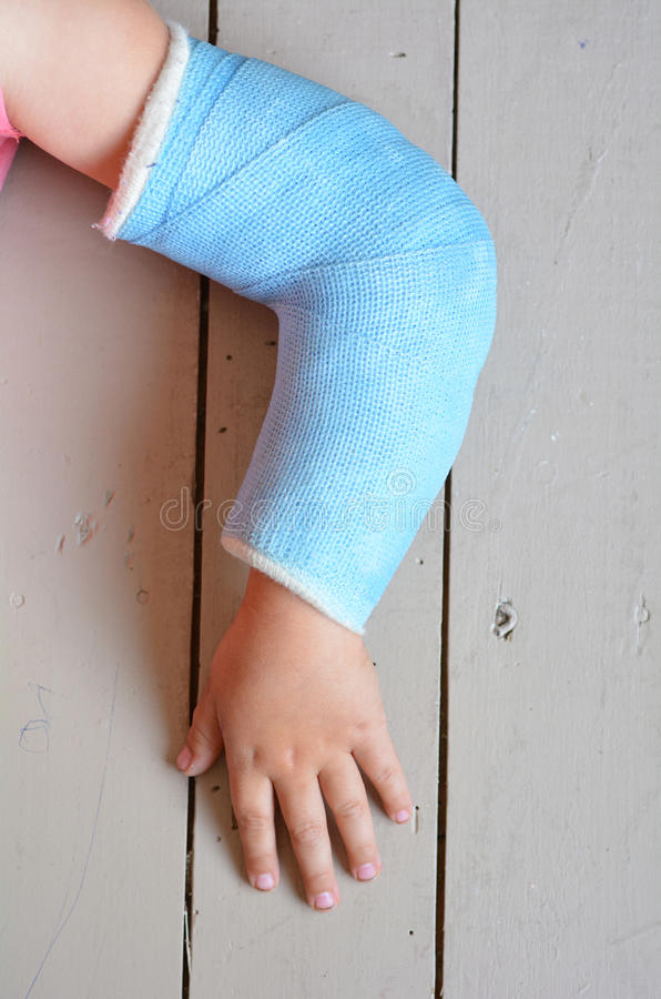Enfant avec la fonte de bras image stock