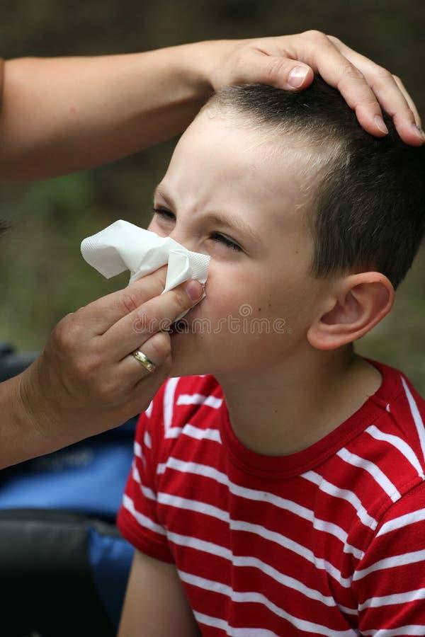 Enfant avec le catarrhe ou l'allergie image libre de droits