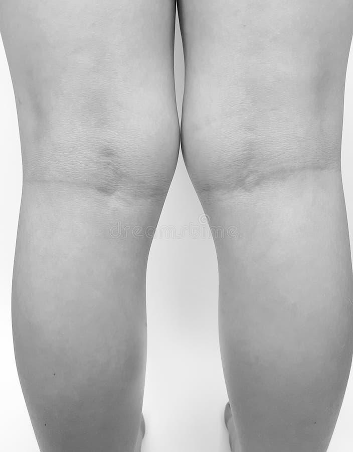 Enfant de jambe de genou de valgus de déformation images libres de droits
