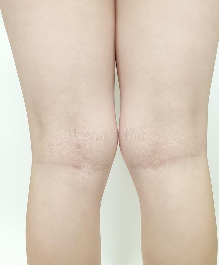 Enfant de jambe de genou de valgus de déformation orthopédique photo stock