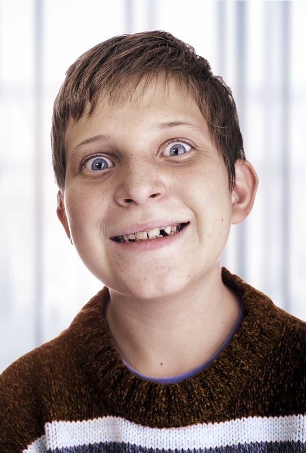 Enfant idiot image libre de droits
