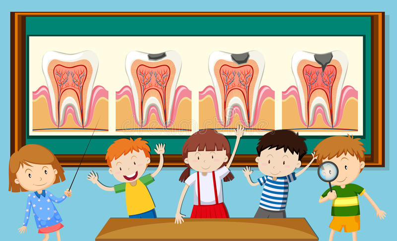 Enfants et diagramme de carie dentaire illustration stock
