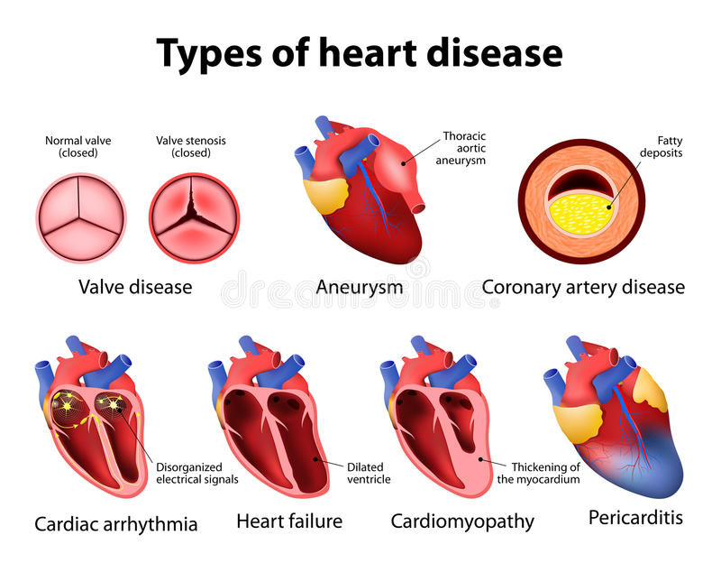 Enfermedad cardíaca ilustración del vector