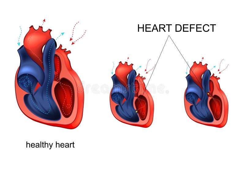 Enfermedad cardíaca defecto ilustración del vector