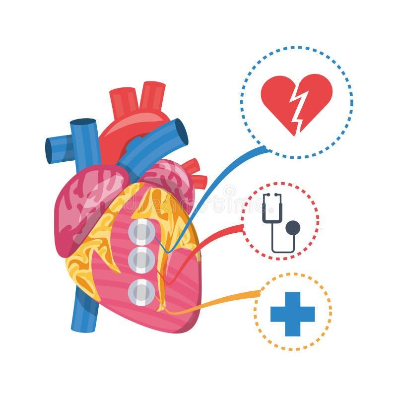enfermedad cardíaca a la prevención del infarto stock de ilustración