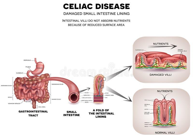 Enfermedad celiaca ilustración del vector