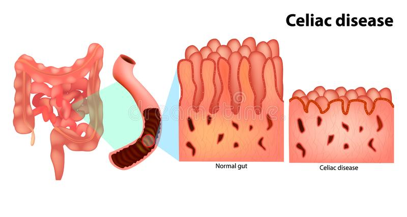 Enfermedad celiaca o enfermedad celiaca ilustración del vector