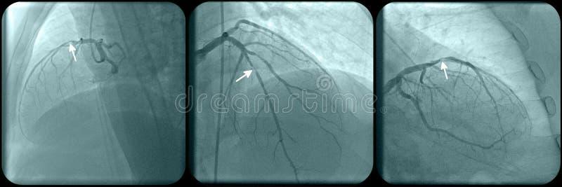 Enfermedad de la arteria coronaria fotografía de archivo libre de regalías