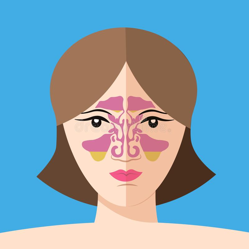 Enfermedad de la sinusitis, ejemplo de la nariz del vector, anatomía del sino, sistema respiratorio humano Estilo plano libre illustration