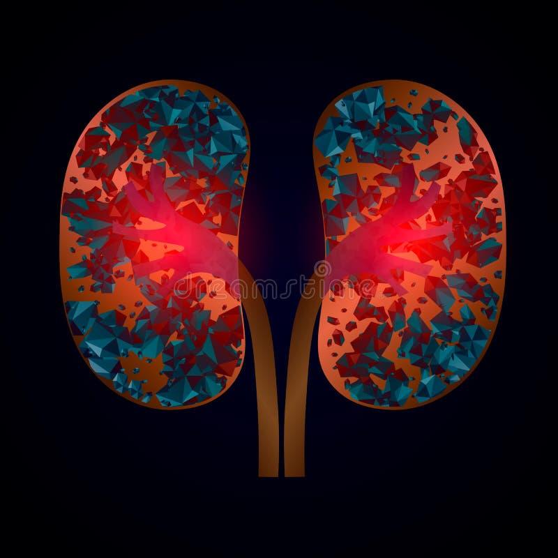 Enfermedad de las piedras de riñón del Nephrolithiasis Ejemplo médico del vector aislado ilustración del vector
