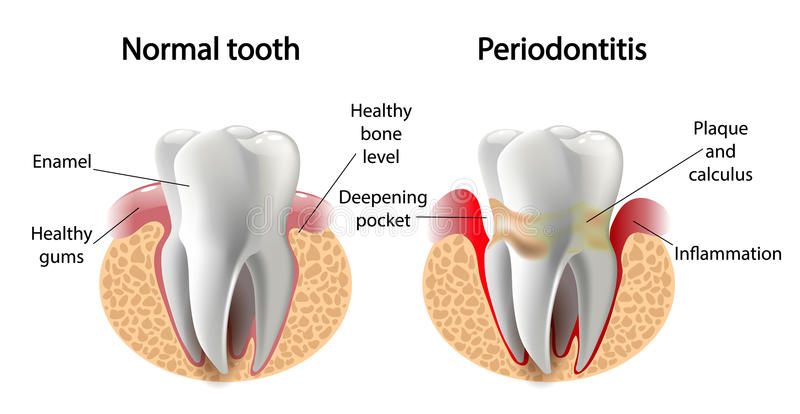 Enfermedad de Periodontitis del diente de la imagen del vector imágenes de archivo libres de regalías