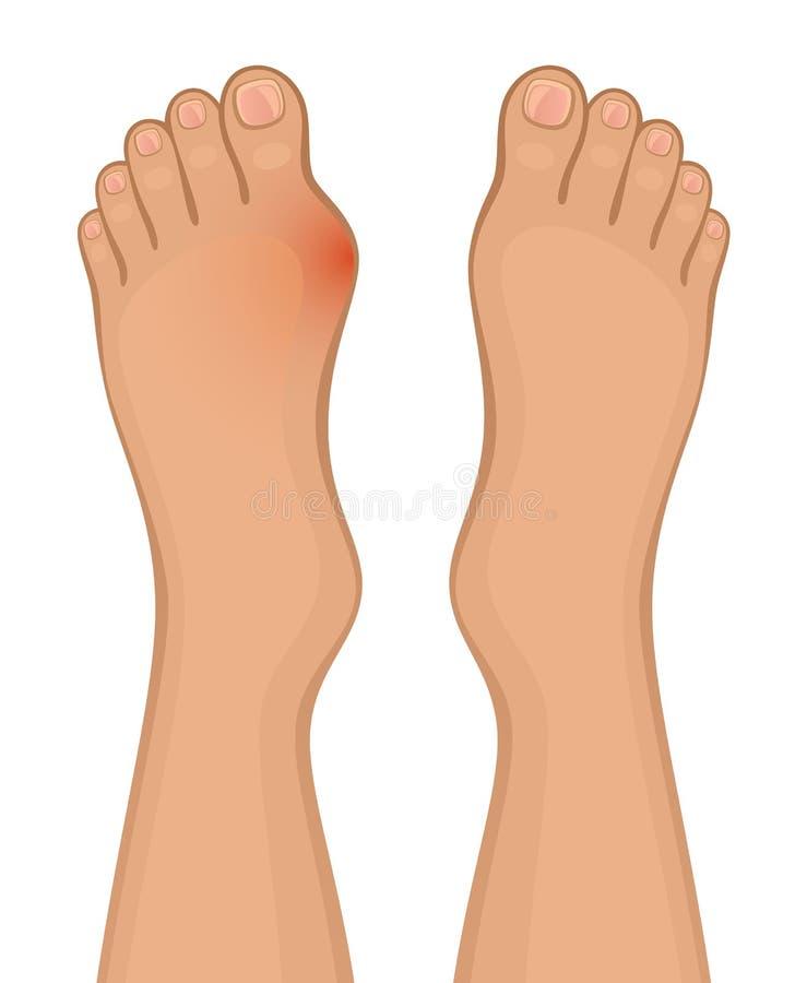 Enfermedad de pie stock de ilustración