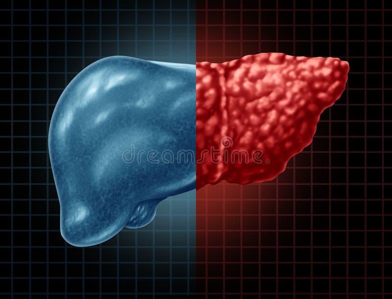 Enfermedad del higado grasa ilustración del vector
