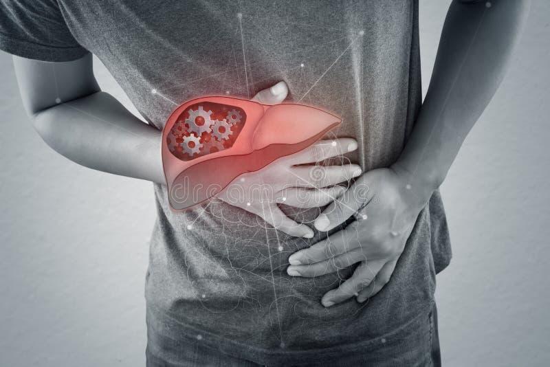 Enfermedad del higado o hepatitis imágenes de archivo libres de regalías