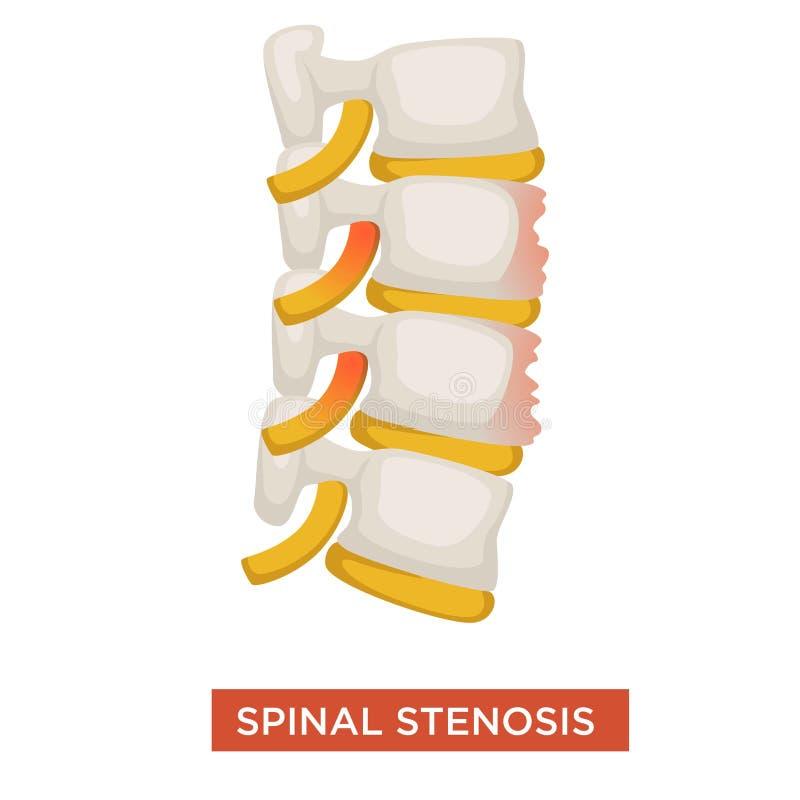 Enfermedad espinal de la espina dorsal de la estenosis o enfermedad vertebral stock de ilustración